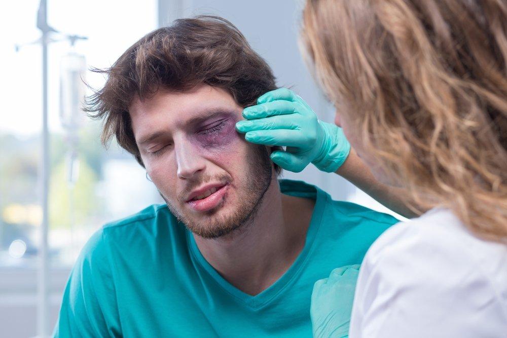 Traumi oculari